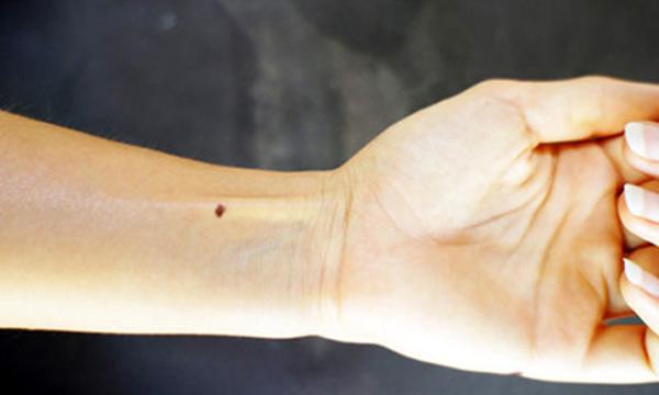 Nốt ruồi ở cổ tay trái thường là những người có nhiều tham vọng, hích đua đòi, hưởng thụ.