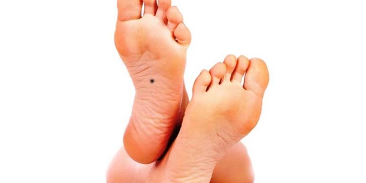 Ý nghĩa của nốt ruồi ở lòng bàn chân