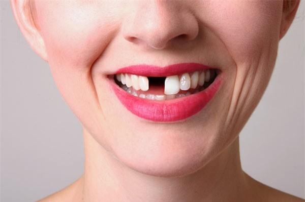 Mơ thấy gãy răng là điềm báo về sự bế tắc trong cuộc sống