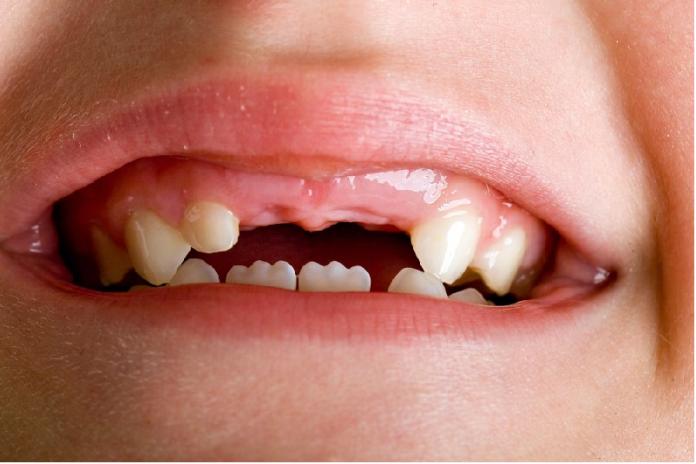 Giải mã giấc mơ thấy gãy răng