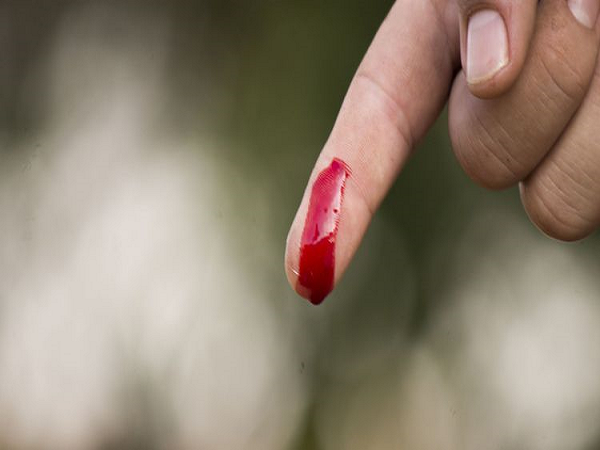 Ngủ mơ thấy máu chảy ở tay là điềm báo gì?
