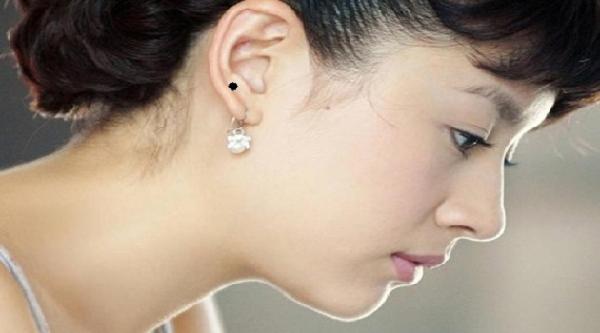 Ý nghĩa của vị trí nốt ruồi ở dái tai phụ nữ