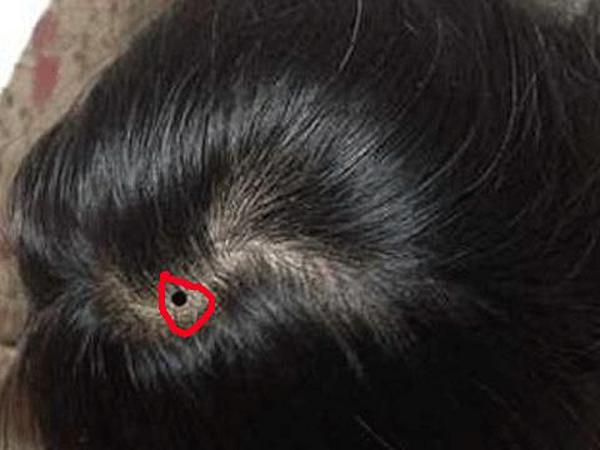Nốt ruồi trên đầu nam và nữ giới có ý nghĩa gì?