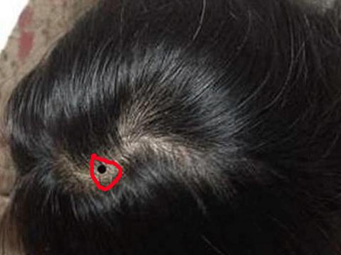Xem bói vị trí nốt ruồi trên đầu có ý nghĩa gì?