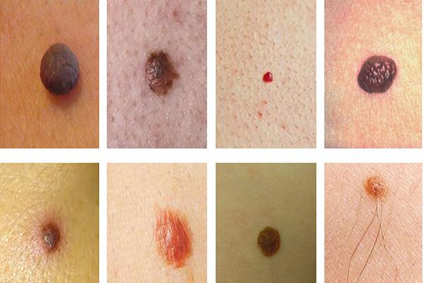 Xem bói nốt ruồi có lông có ý nghĩa gì?