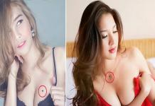 Nốt ruồi đỏ ở ngực phụ nữ nói lên điều gì?